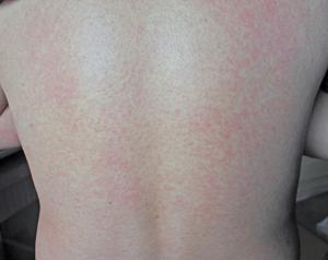 Phát ban trên da có thể là dấu hiệu HIV